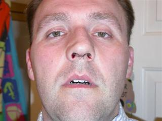 Brett's Septoplasty